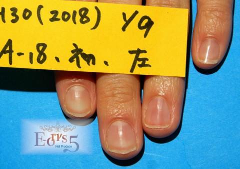 オニコレクシス(爪縦裂傷)の育成。~A-18様・初来店~