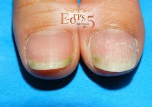 グリーンネイル(緑膿菌感染爪)になってお困りのネイル好き様へ.